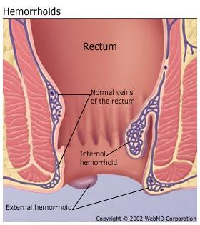 understandinghemorrhoidsbasics-hemorrhoids