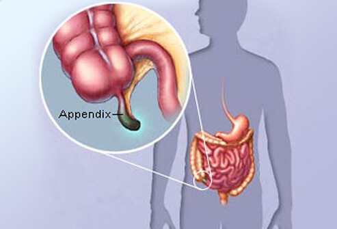 appendicitis_s1_appendix_illustration