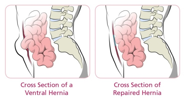 cross-section-ventral-hernia-and-repaired-hernia