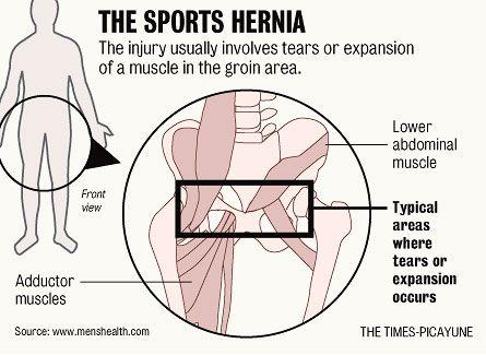 sportshernia052010-0