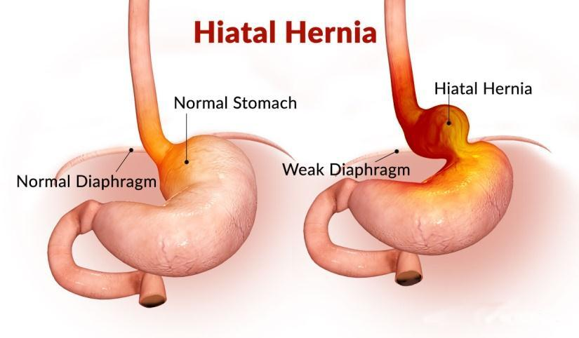 Hiatal-Hernia-It-can-be-diagnosed-if-the-following-symptoms-are-found-heartburn-chest